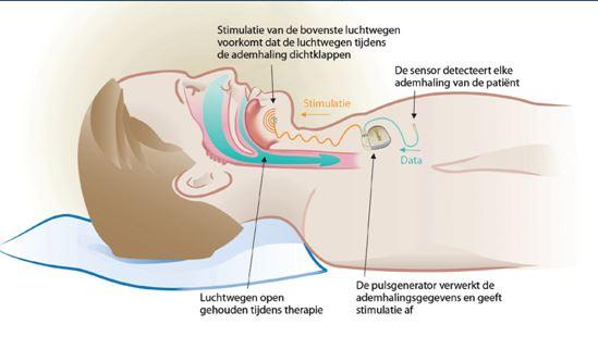Tongzenuwstimulator